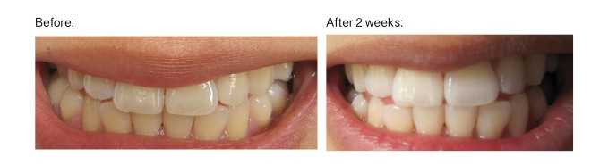 My teeth after two weeks of teeth whitening with Philips Zoom Daytime home teeth whitening.